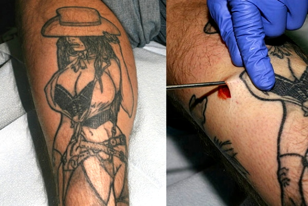 Implants for Tattoo